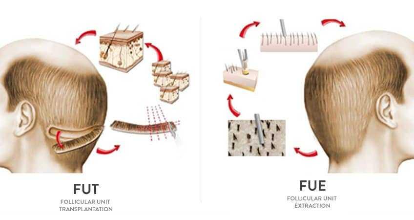 Fue vs FUT hair transplant