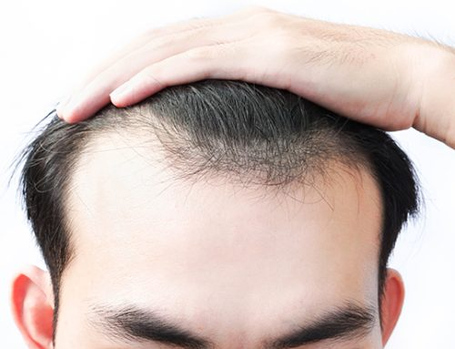 (test)More hair loss when taking finasteride! Is this normal?